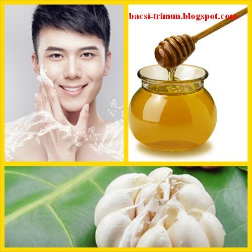 Mật ong và tỏi trị mụn tuổi dậy thì hiệu quả cho nam giới